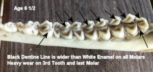 Teeth at Age 6 1/2 with Wider Black Dentine Line